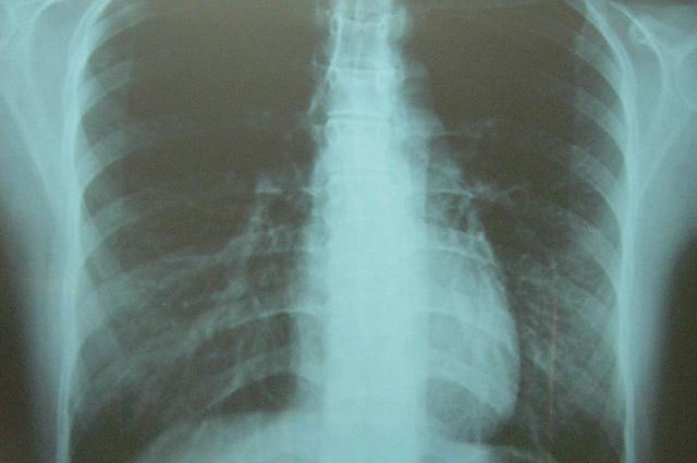 肺のレントゲン